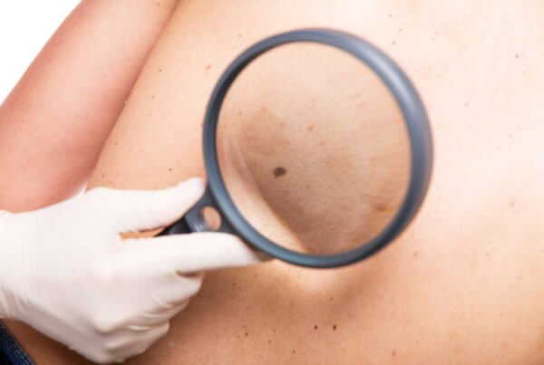 Diagnostik beim schwarzen Hautkrebs