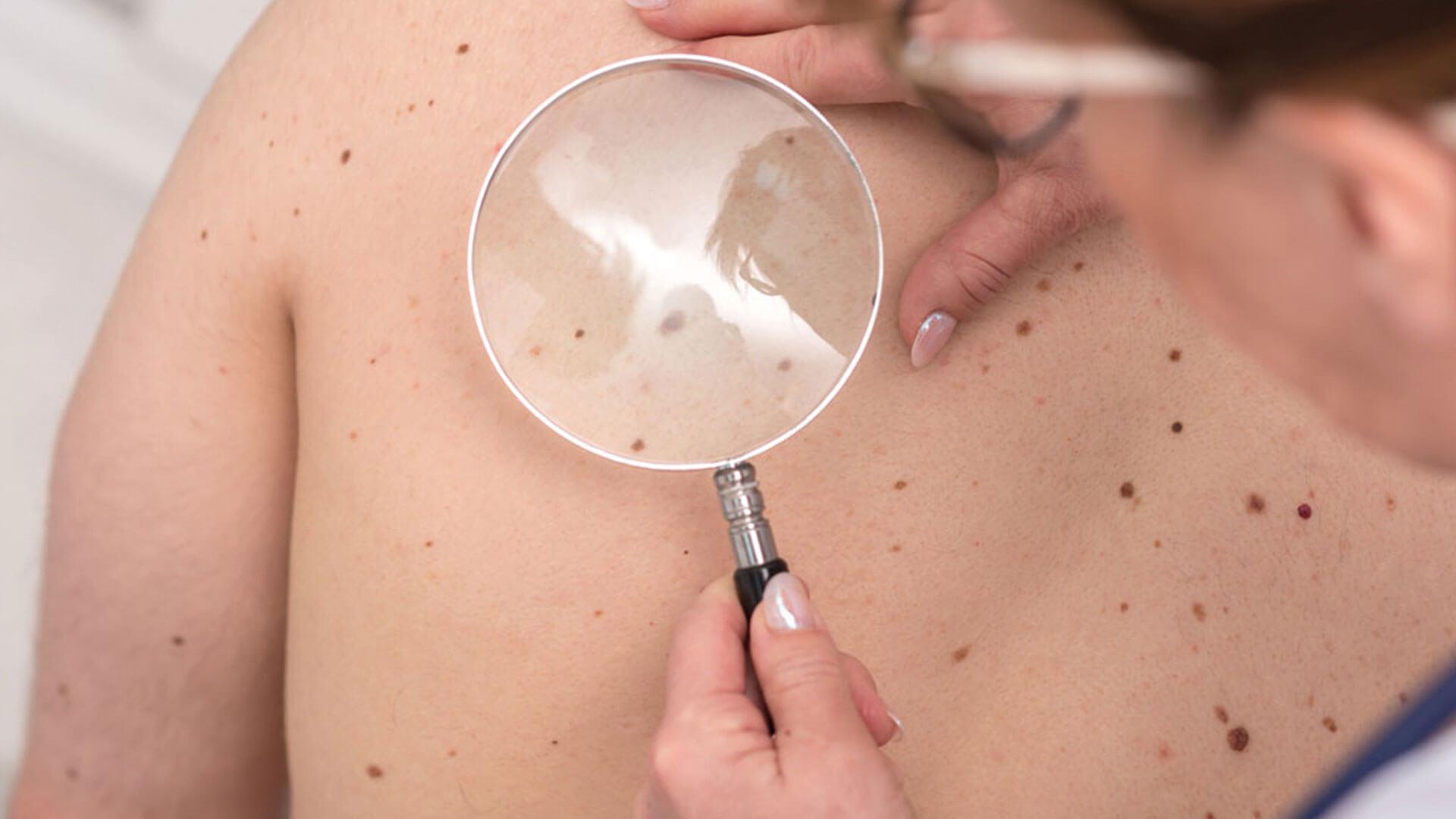 Bessere Therapien beim schwarzen Hautkrebs